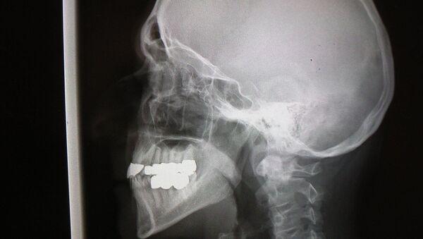 X-Ray scull - Sputnik International