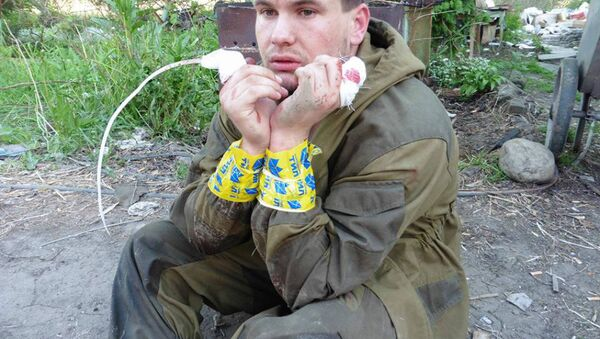 An image of what appears to be a Donbass milita fighter with his index fingers cut off by his Ukrainian captors. - Sputnik International