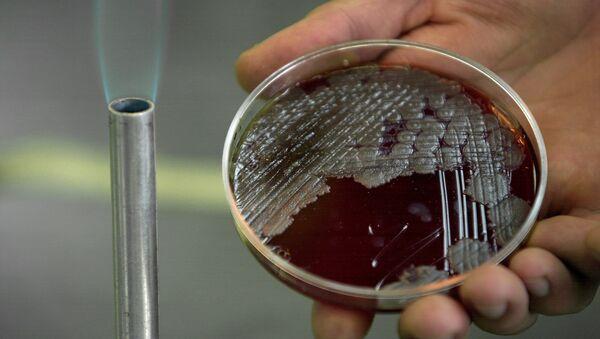 Sample of billions of Anthrax bacteria - Sputnik International