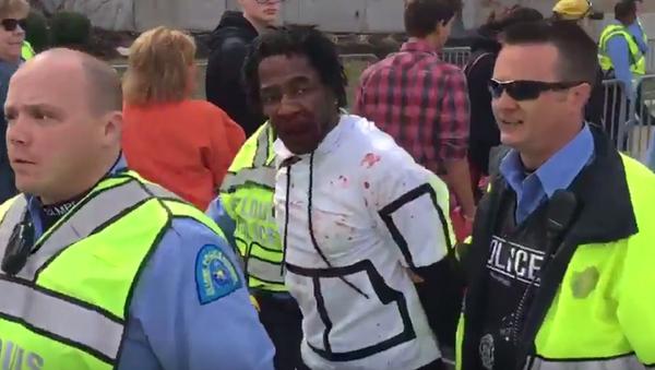 Ferguson Protester Beaten Bloody Outside St. Louis Trump Rally - Sputnik International