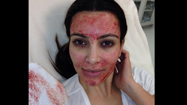 Kim Kardashian, showing off 'vampire facial' in 2013 - Sputnik International