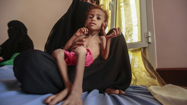 In this Oct. 1, 2018 file photo, a woman holds a malnourished boy at the Aslam Health Center, in Hajjah, Yemen as millions of Yemenis are edging closer to famine and fatal disease one year after a Saudi-led coalition imposed a blockade on sea, land and air routes in the Arab world's poorest country. - Sputnik International