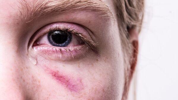 Eye injury, minor - Sputnik International