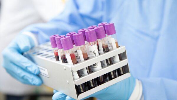 Vaccine testing - Sputnik International