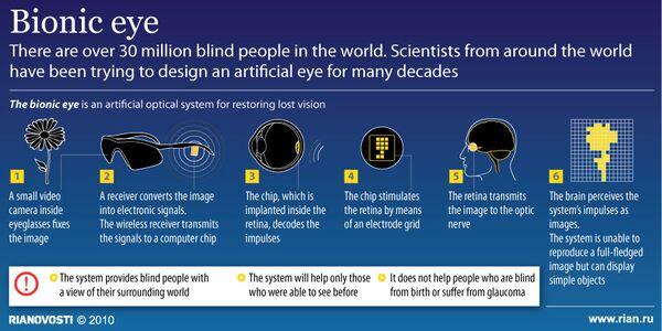 Bionic eye - Sputnik International
