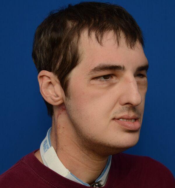 Richard Lee Norris seven months after his surgery. - Sputnik International