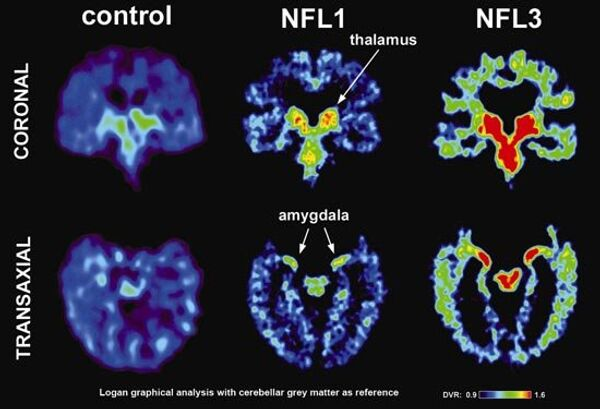 Scan showing a healthy brain and two scans from professional football players with a brain disease called CTE - Sputnik International